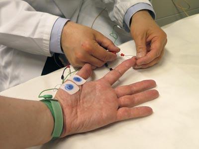 Hand eines Patienten, an die der Arzt Messchleifen anbringt